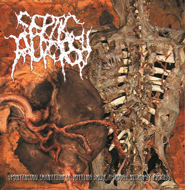Septic Autopsy ‎– Spontaneous Emanation Of Rotting Smell Through Necropsy Process CD