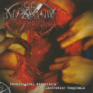 Dicephalus - Pathological Atrocities In Clandestine Hospitals CD