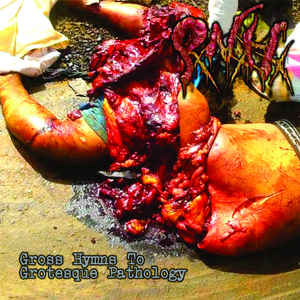 Pancreatite Necro Hemorrágica ‎– Grossy Hymns To Grotesque Pathology CD