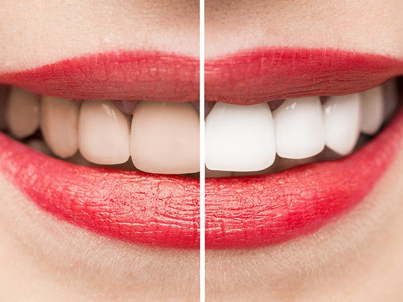 Activated Charcoal Coconut Teeth Whitener - MCTTC TECH STORES