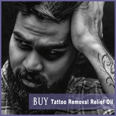 Laser Tattoo Removal Relief Oil