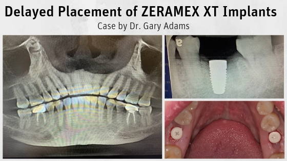 Delayed Placement of ZERAMEX XT Implants