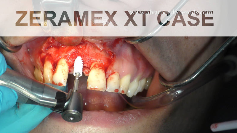 ZERAMEX XT Tapered Ceramic Implant placed in Narrow Ridge