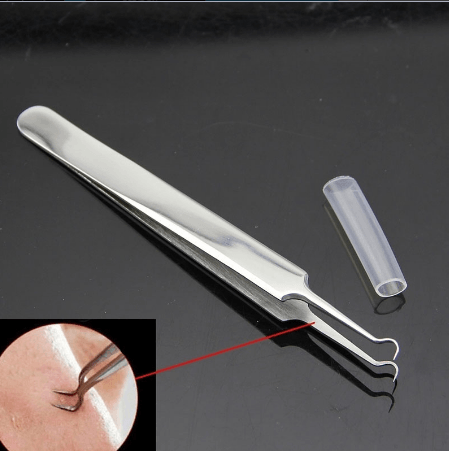 Blackhead and Comedone Acne Extractor