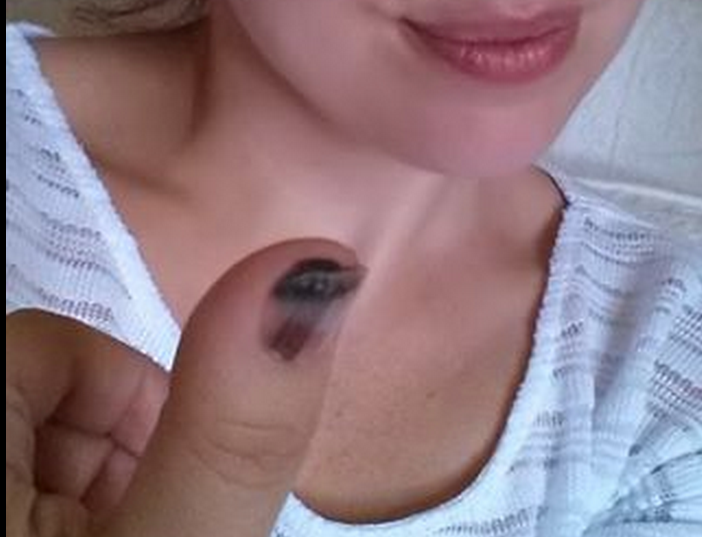 Melanoma or Nail Fungus? Woman Shows Importance of Proactive ...
