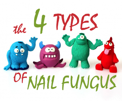 Learn the 4 Types of Fungal Nail Infection