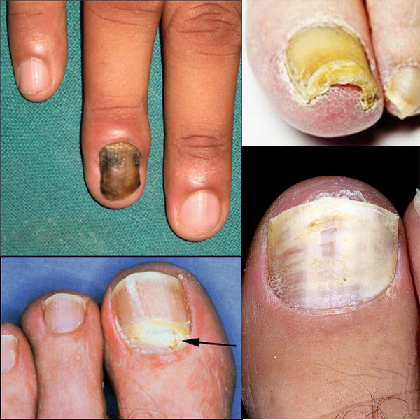 The Four Most Common Types of Nail Fungus