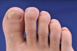 Recognize Nail Fungus 10 Pictures Common Symptoms
