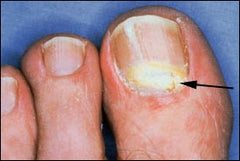 is the least common onychomycosis in healthy persons though it occurs fairly often in immunocompromised individuals
