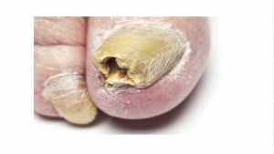 advanced fungal nail infection