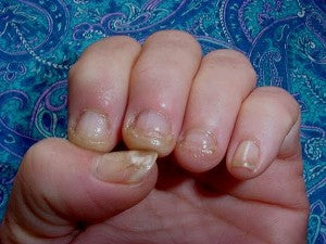 artificial nail fungus