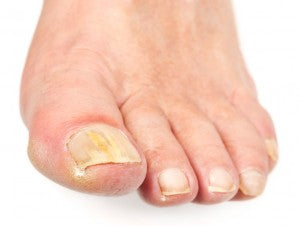 escalating nail fungus