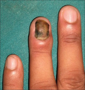 Candida onychomycosis, one of the 4 types of fungal nail infections