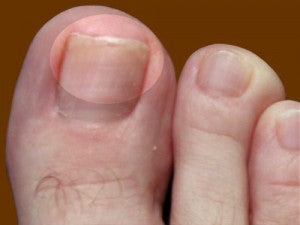early stages of toenail fungus