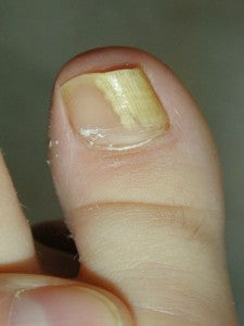 Distal Lateral Subungual Onychomycosis, the most common type of fungal nail infection.