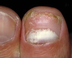 Proximal Subungual Onychomycosis , one of the 4 types of nail fungus infections.