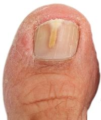 early stage toenail fungus