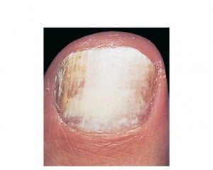 White Superficial Onychomycosis, one of the 4 types of fungal nail infection.