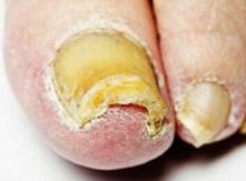 infection of the nail plate by fungus