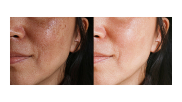 How To Get Rid Of Melasma Naturally
