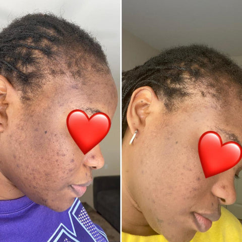 acne dark spots before and after