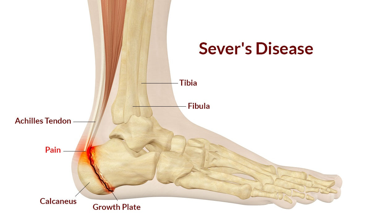 Sever\'s Disease & Heel Pain: Causes, Symptoms & Treatments – Synxsole