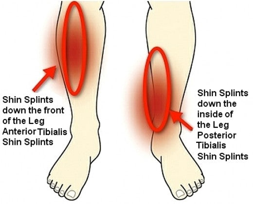 Shin splints & Pain