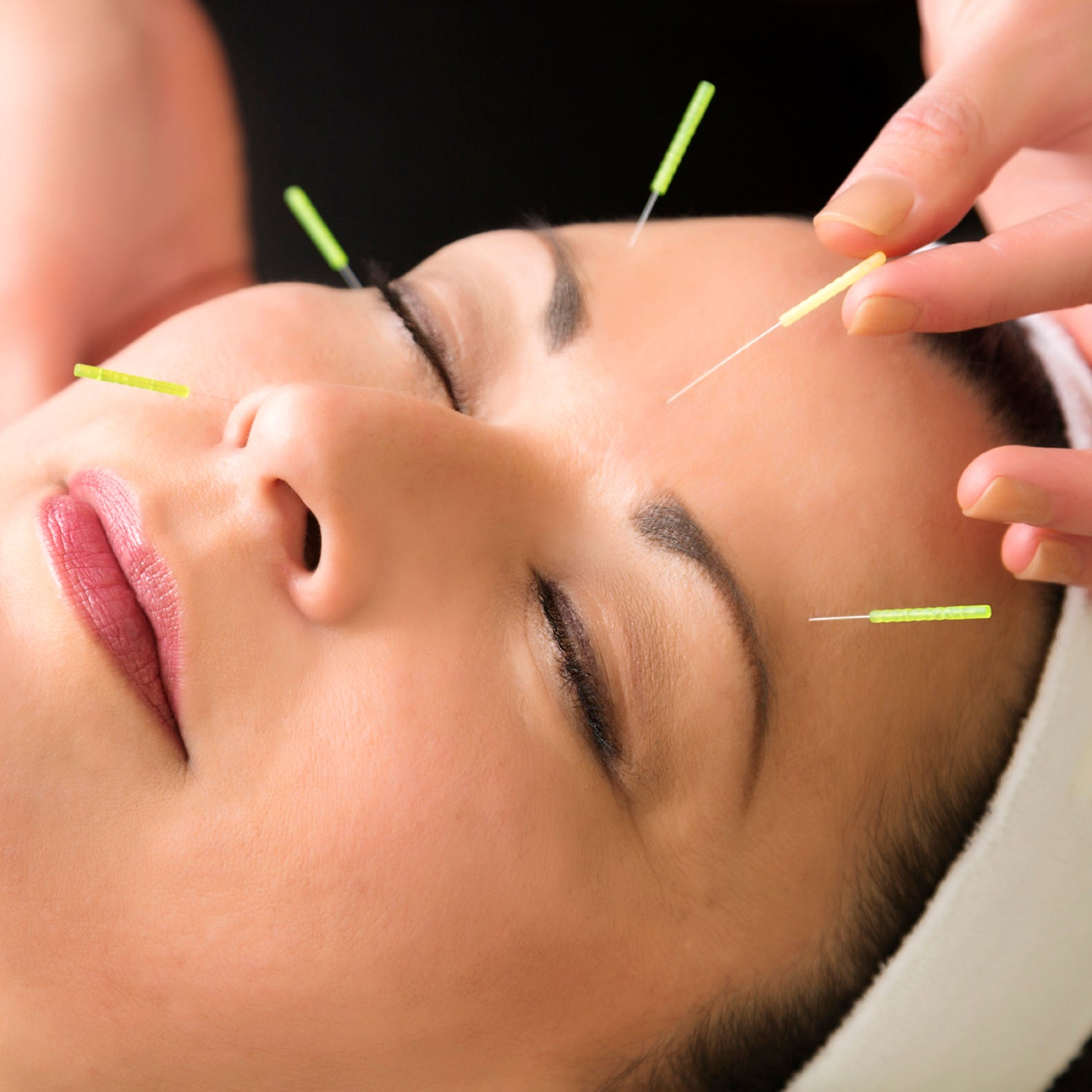 All About Facial Acupuncture and its Benefits