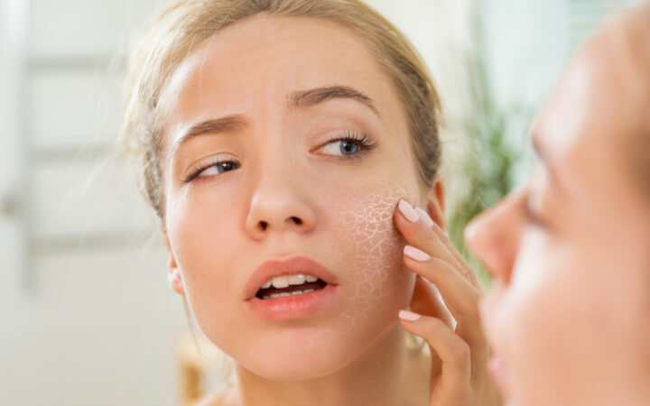 7 steps to repair dry skin