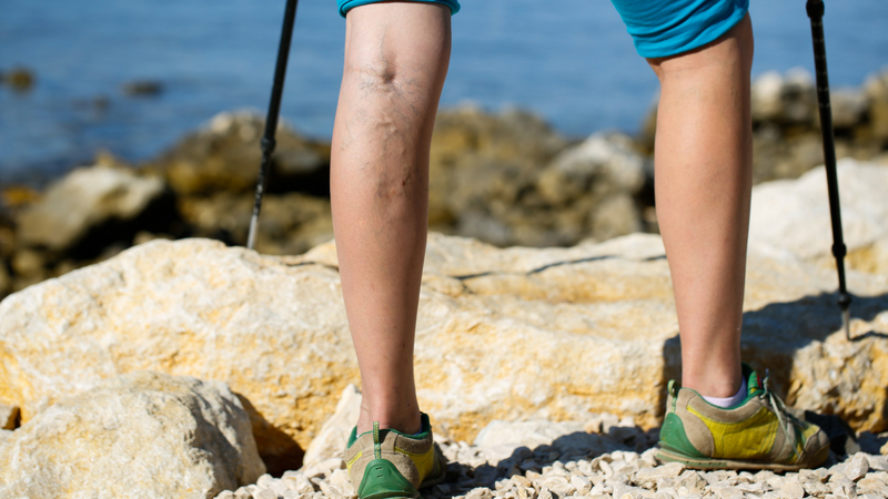 How to reduce varicose veins with Collagen