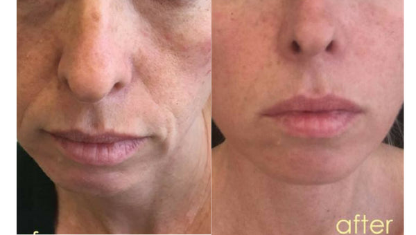 21 days After taking Taut Collagen