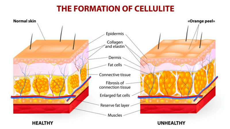 Cellulite Skin Graph - health vs unhealthy skin
