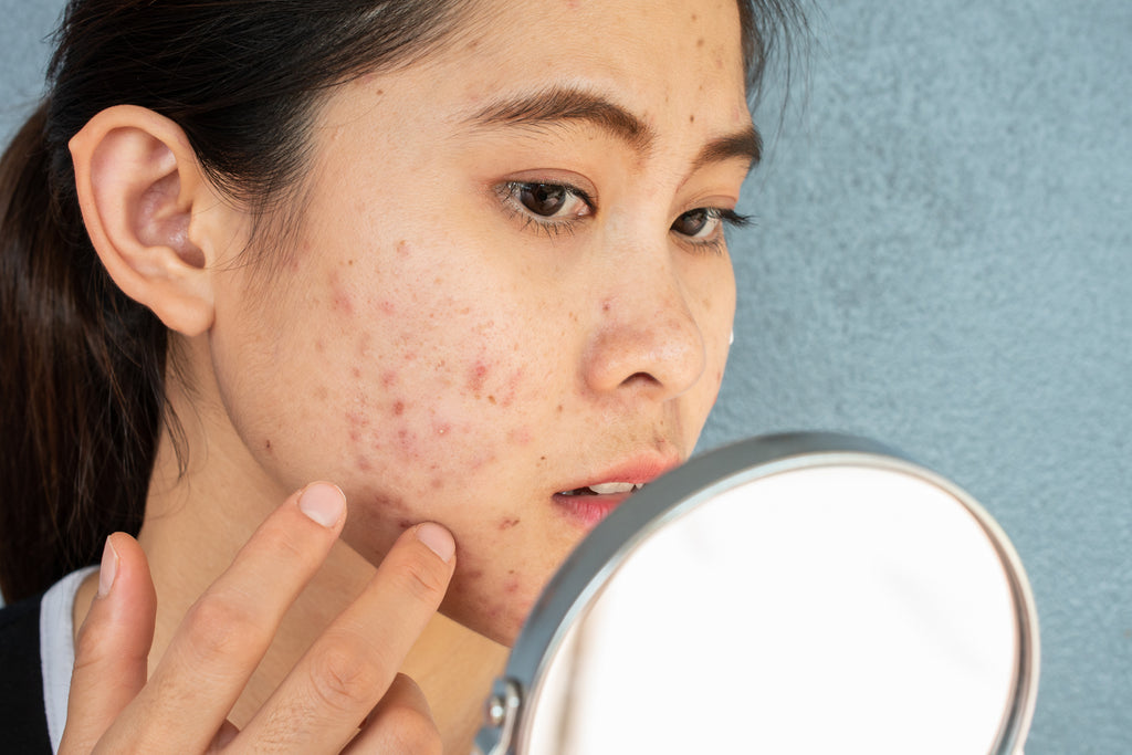 does collagen help with acne