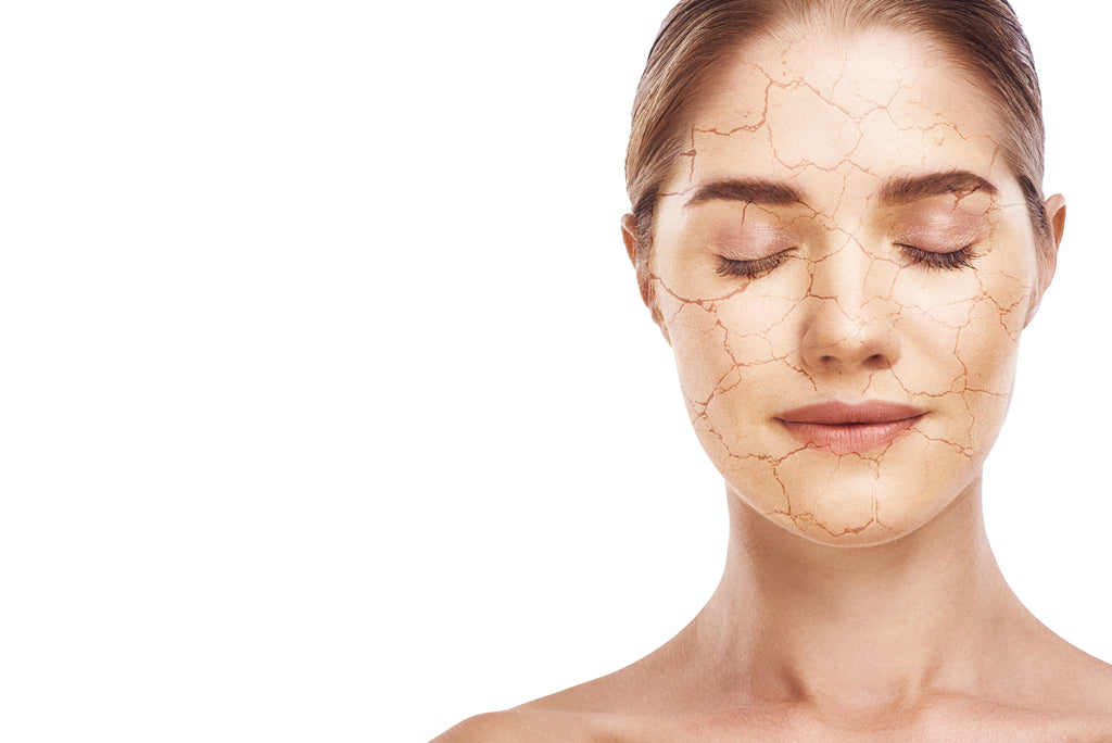 dry skin treatment cracked flaky