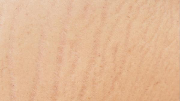 how can i get rid of stretch mark