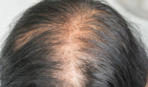 Menopause thinning hair and hair loss