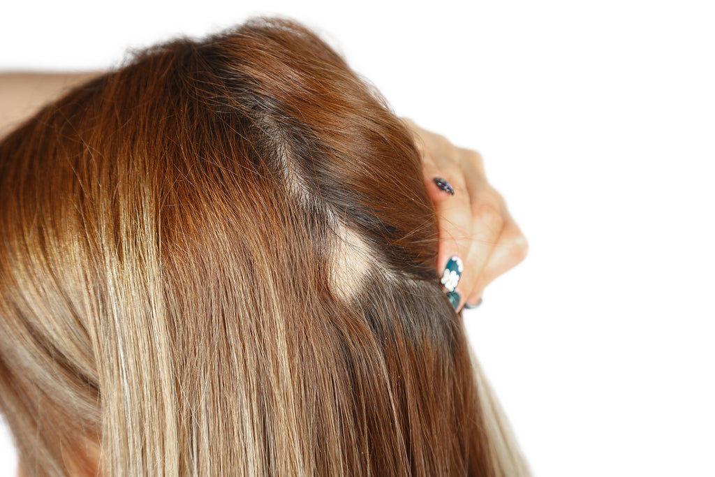 thinning hair causes patch