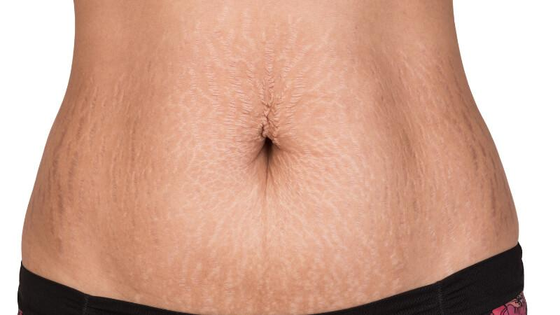 what helps with stretch marks stomach