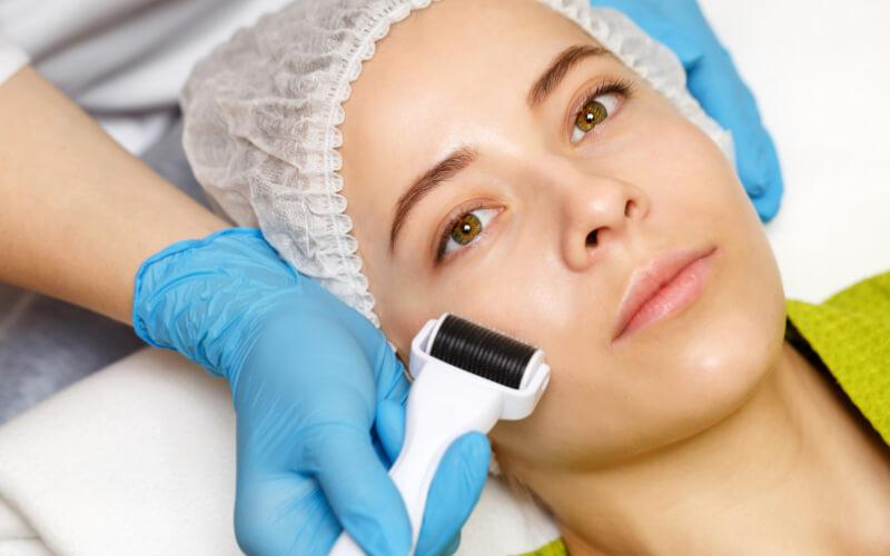 what is skin needling face