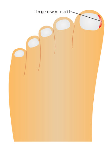 Natural Relief for Ingrown Toenails