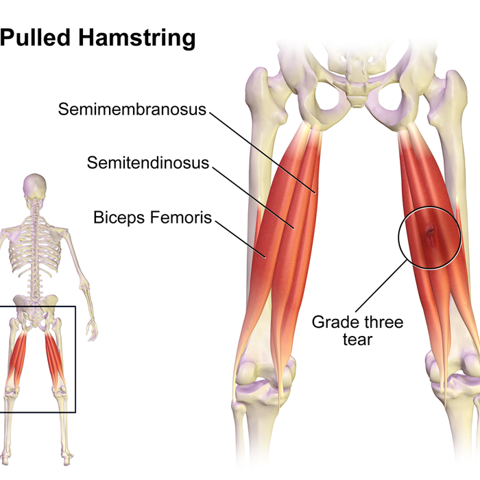 Understanding & Preventing Hamstring Injuries in Football