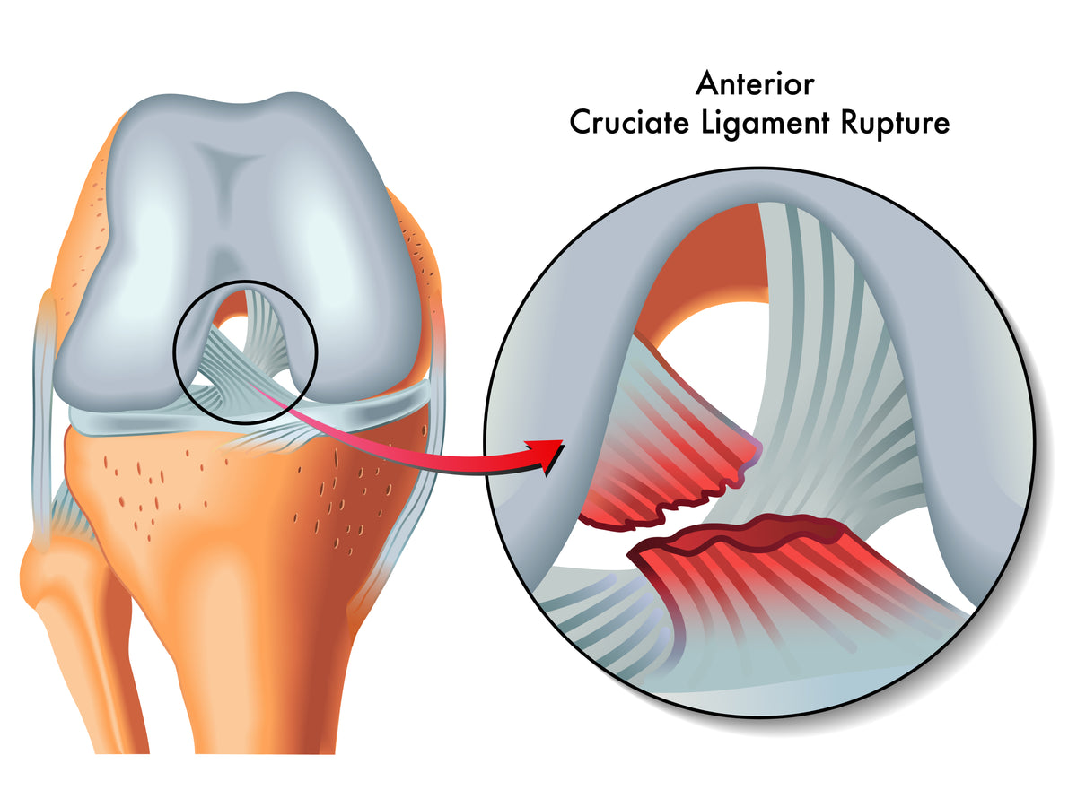 Understanding & Preventing ACL Injuries In Football