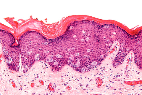 extramammory pagets disease histology slide
