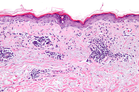 systemic lupus histology slide