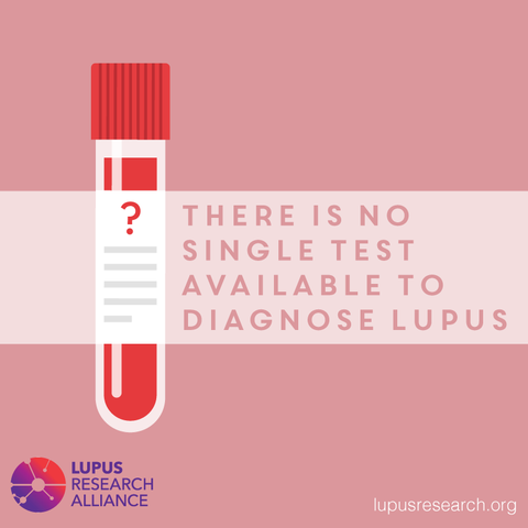 there is no single test for lupus