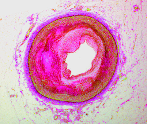 arteriosclerosis histology slide