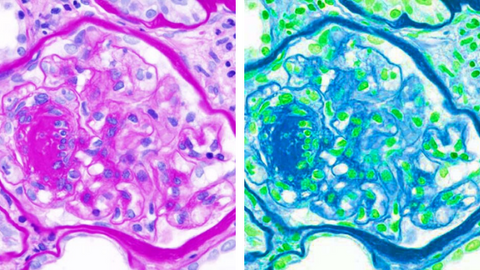 two differently colored diabetes cell images side by side