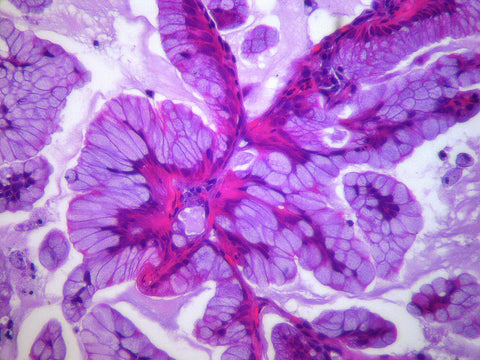purple lung cancer cell image