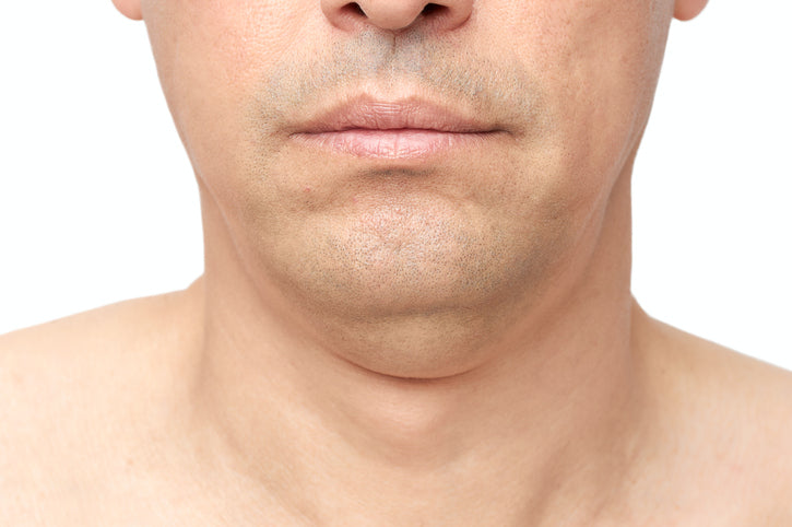 Chin exercises receding Latching: Thoughts