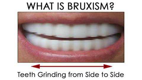 What is Bruxism and Is It Bad For My Teeth?